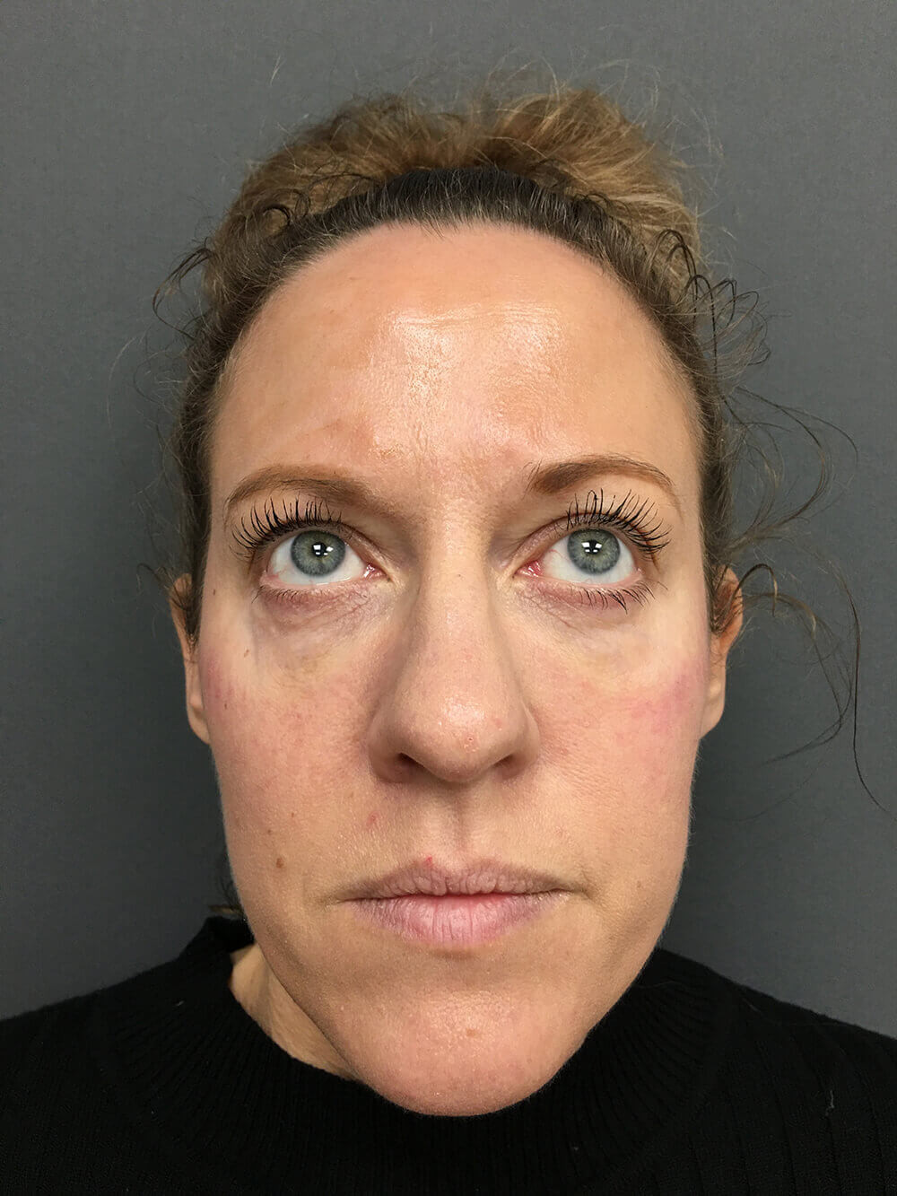 botox-after1