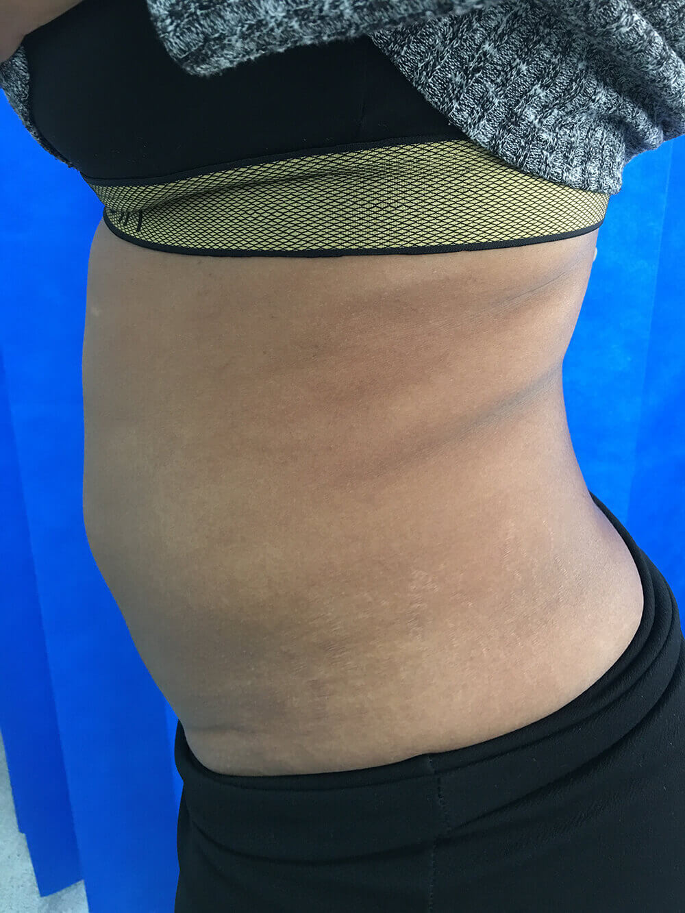 lipo-side-after